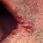 Angular cheilitis home remedy