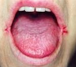 Angular cheilitis home remedy