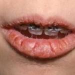 Cracked lip corners