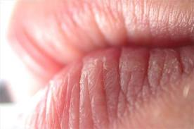 dry cracked lips